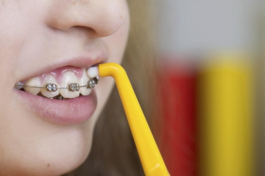 Что будет если не чистить зубы с брекетами