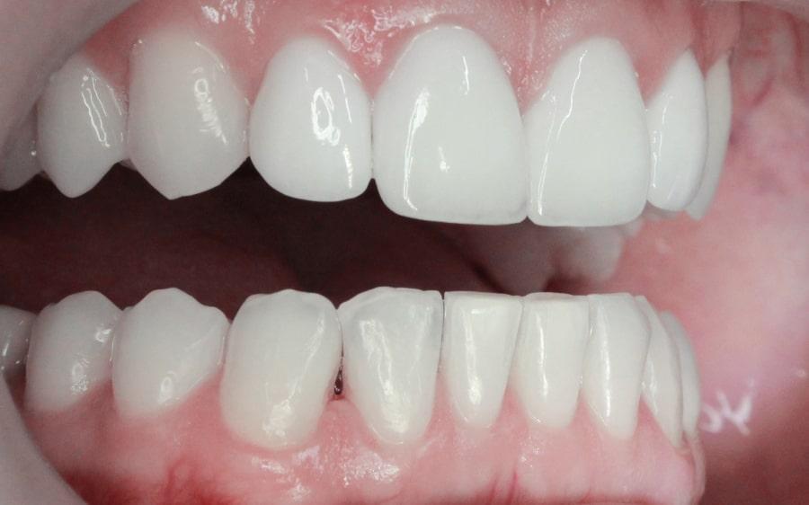 Керамические виниры без обточки зубов