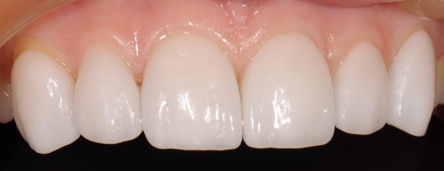Люминиры: цена за один зуб