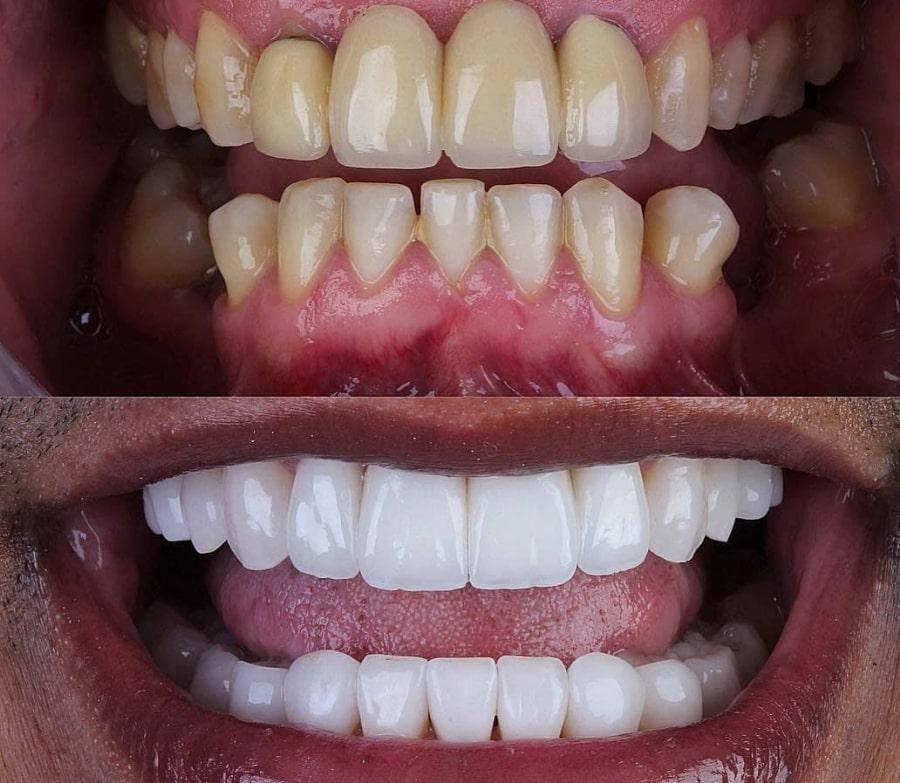 Люминиры, зубы - цены