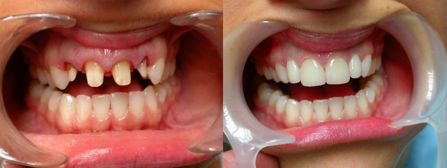 Несъемные протезы зубов