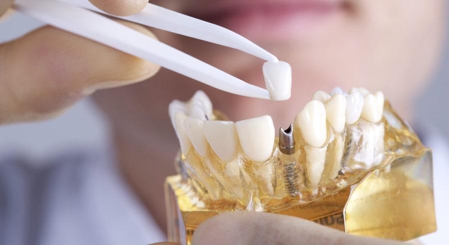 Протез на один зуб