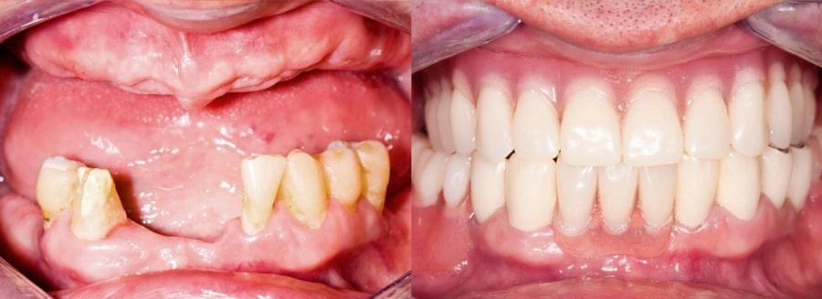 Современные протезы зубов на фото до и после установки
