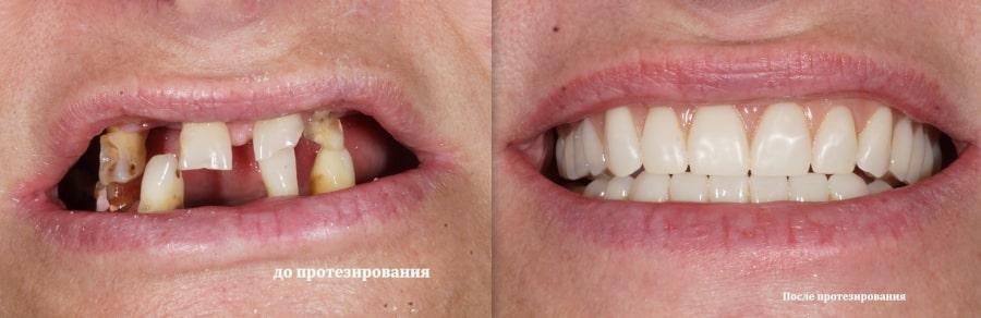 Результат протезирование зубов