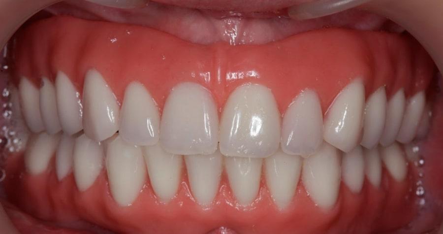 Мягкий зубной протез во рту