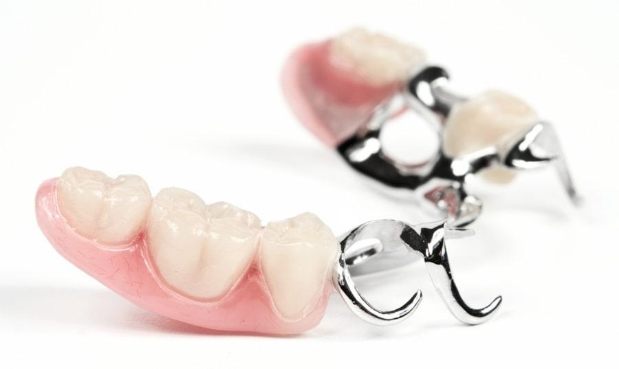 Временные зубные протезы