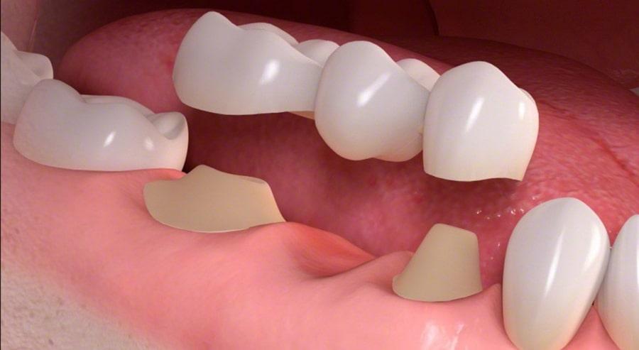Зубное протезирование - мост