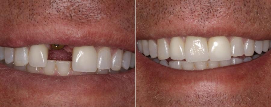 Фото зубов до и после установки протеза
