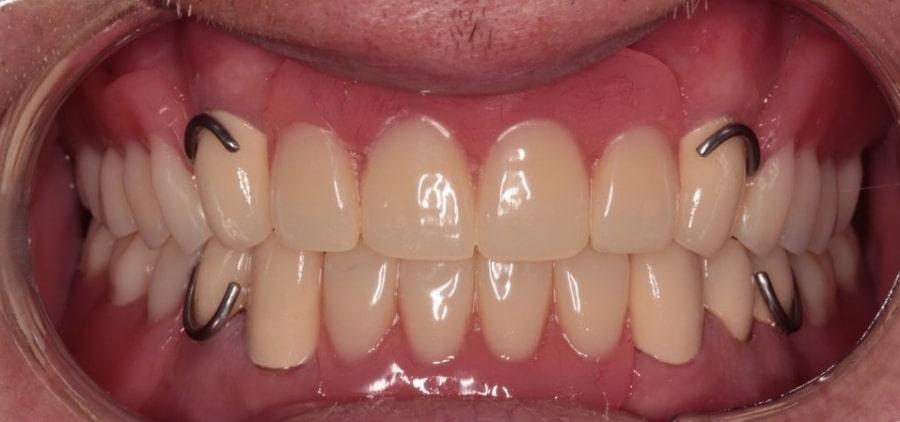 Съемный протез зубов