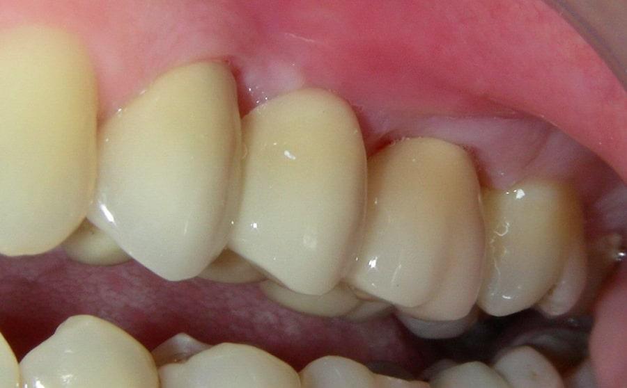Металлокерамический зубной протез