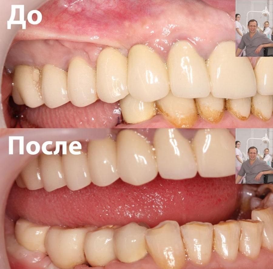 Фото зубов до и после установки мостовидного протеза зубов