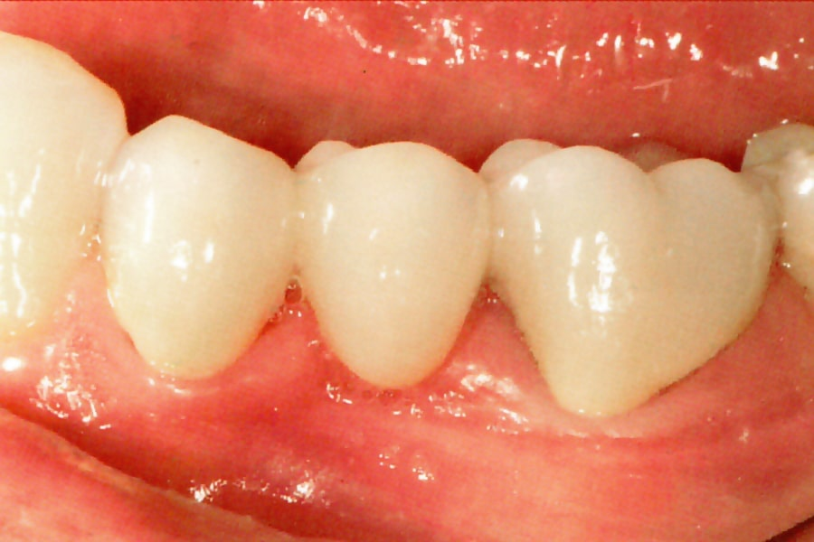 Фото мостовидного зубного протеза после установки