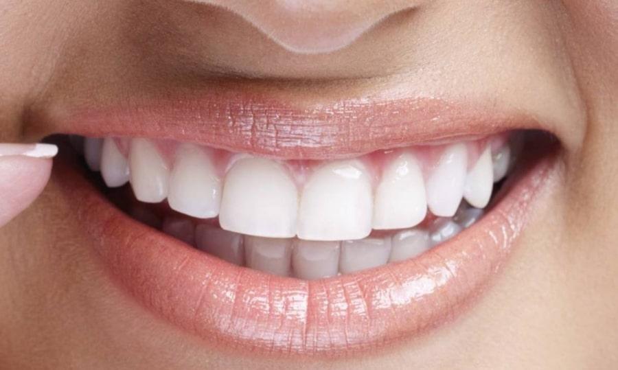 Красивые зубы