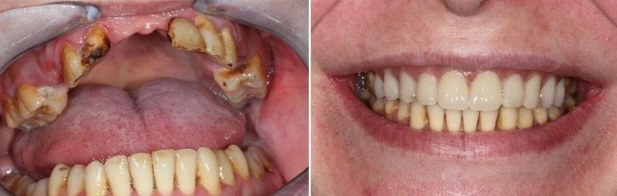 Фото до и после базальной имплантации зубов