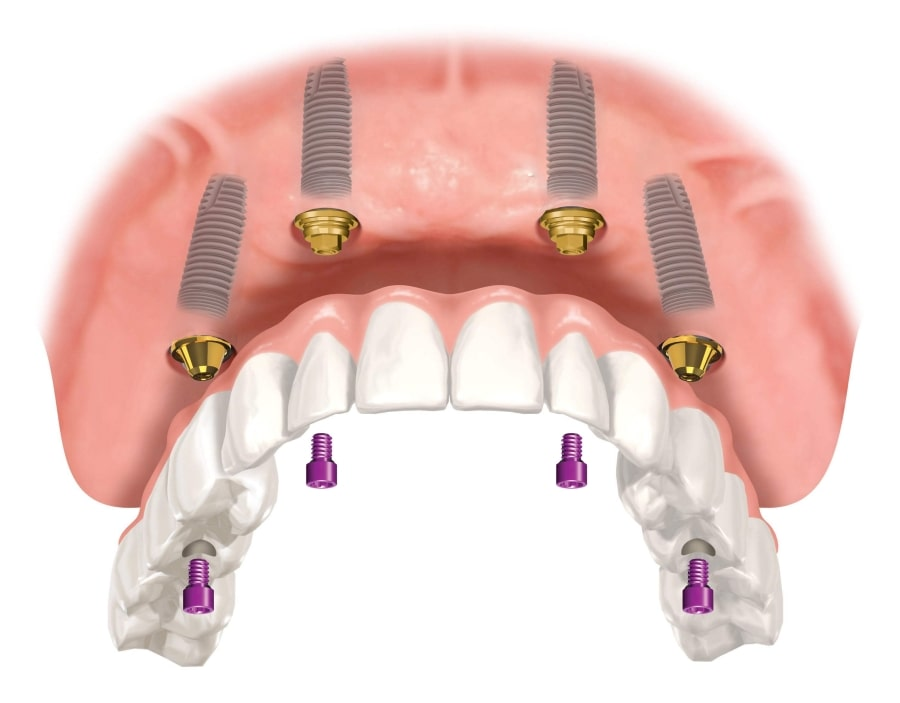 Методика базальной имплантации