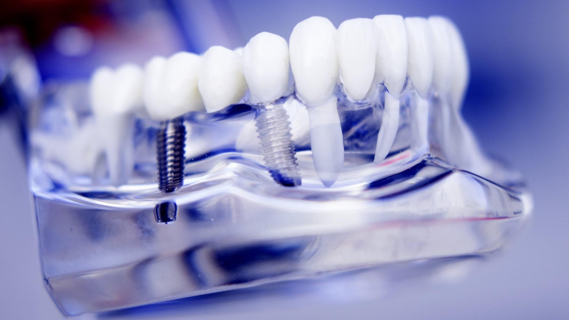 Базальная имплантация зубов в Киеве,  базальная имплантология цены в Украине
