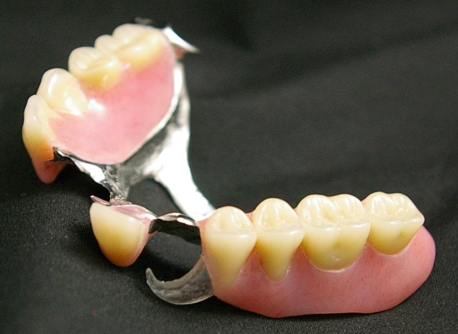 Изображение бюгельного протеза зубов