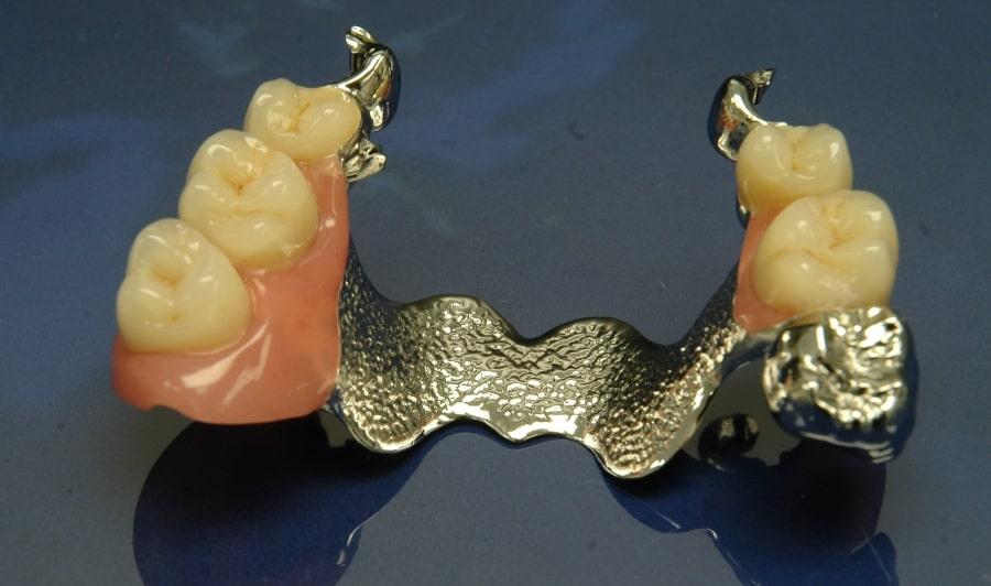 Бюгельный протез для верхней челюсти