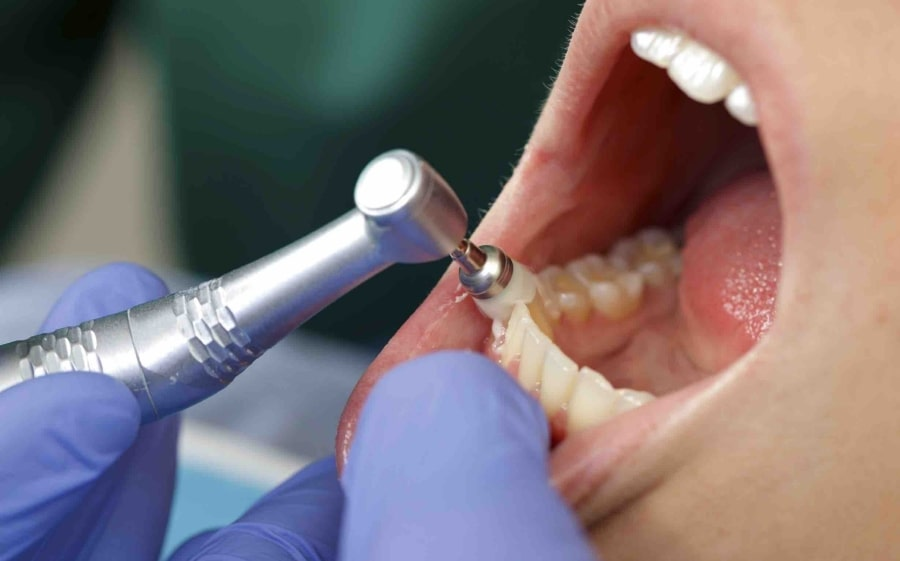 Гигиеническая чистка полости рта