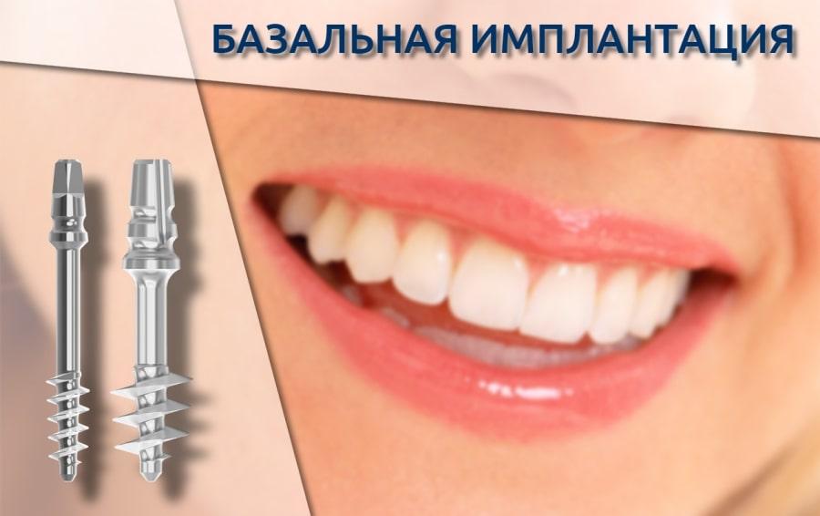 Понятие базальной имплантации