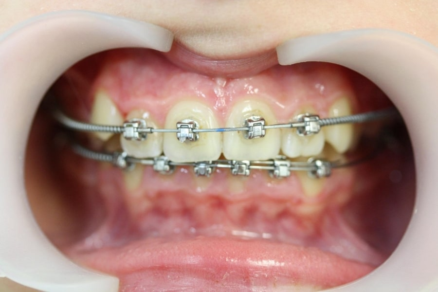 Брекеты на зубах ребенка
