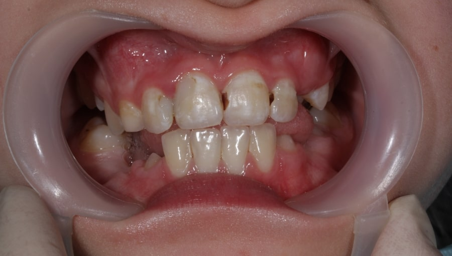 Кариес зубов у ребенка