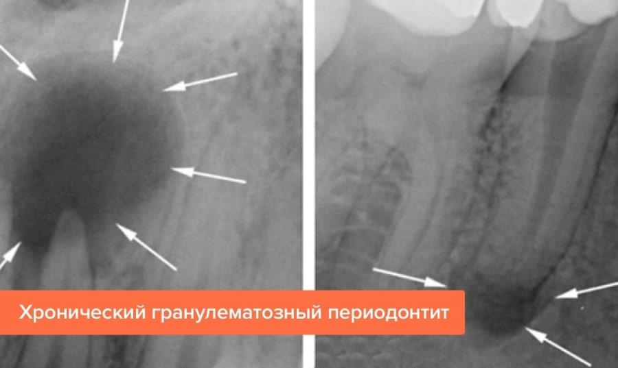 Периодонтит на рентген-снимке