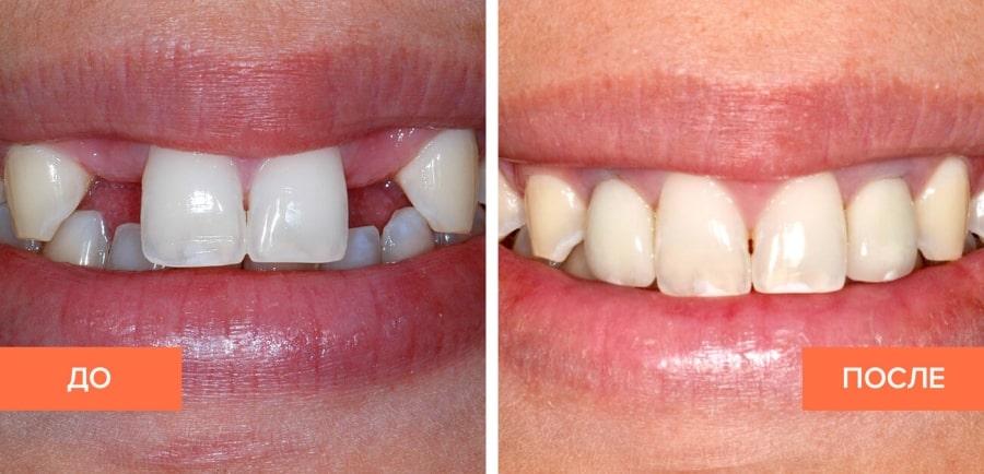 Имплантация двух зубов