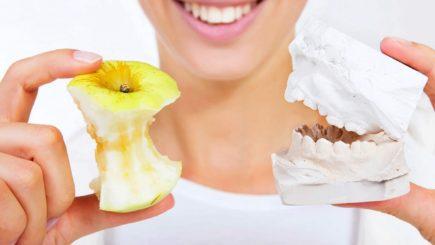 Имплантация зубов, Харьков