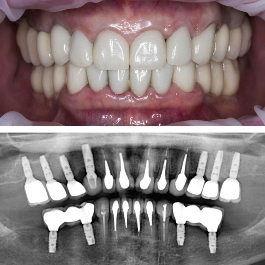 Импланты зубов на рентген-снимке