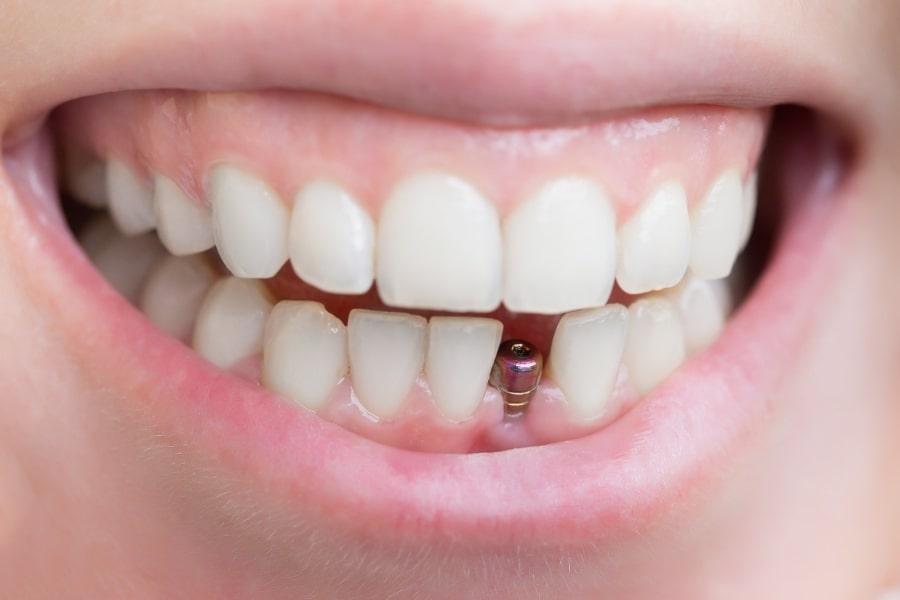 Имплант без коронки зуба