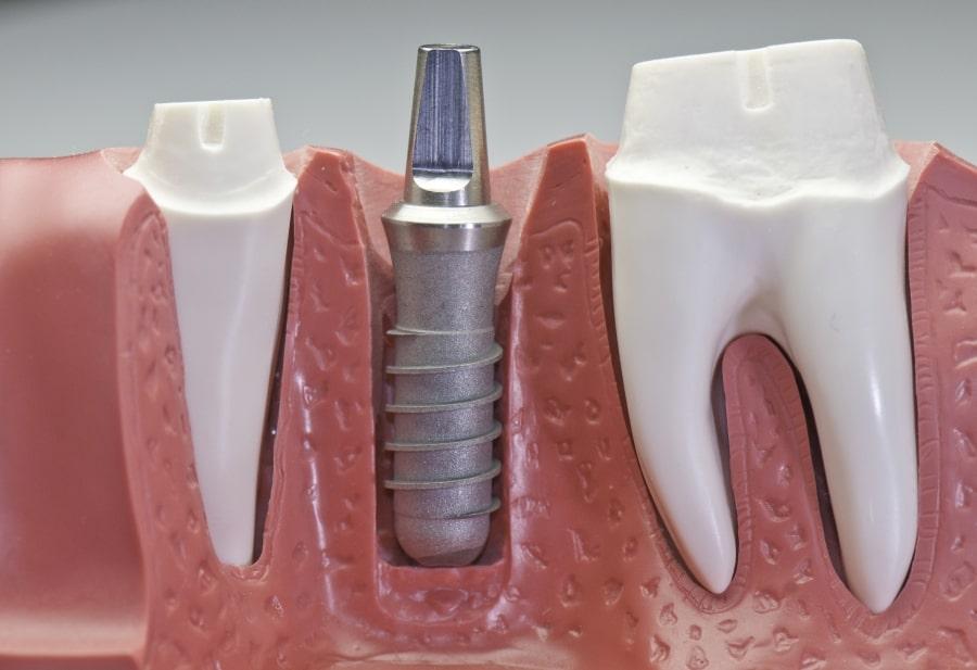 Имплант зуба наглядно