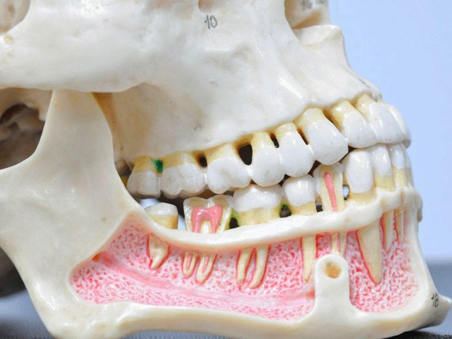 Макет челюсти с имплантами зубов