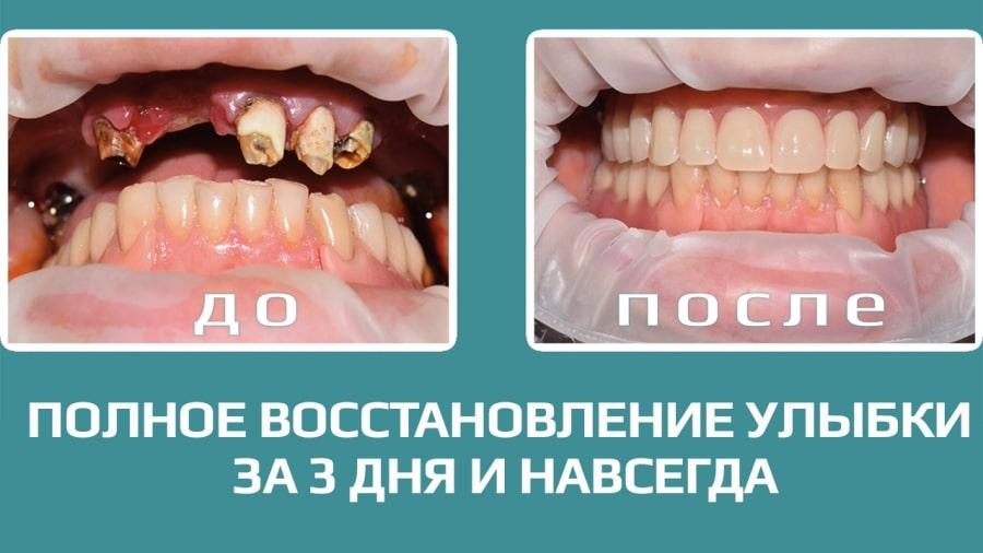 Зубные импланты за 3 дня