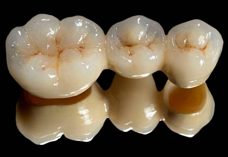 Фото зубного моста