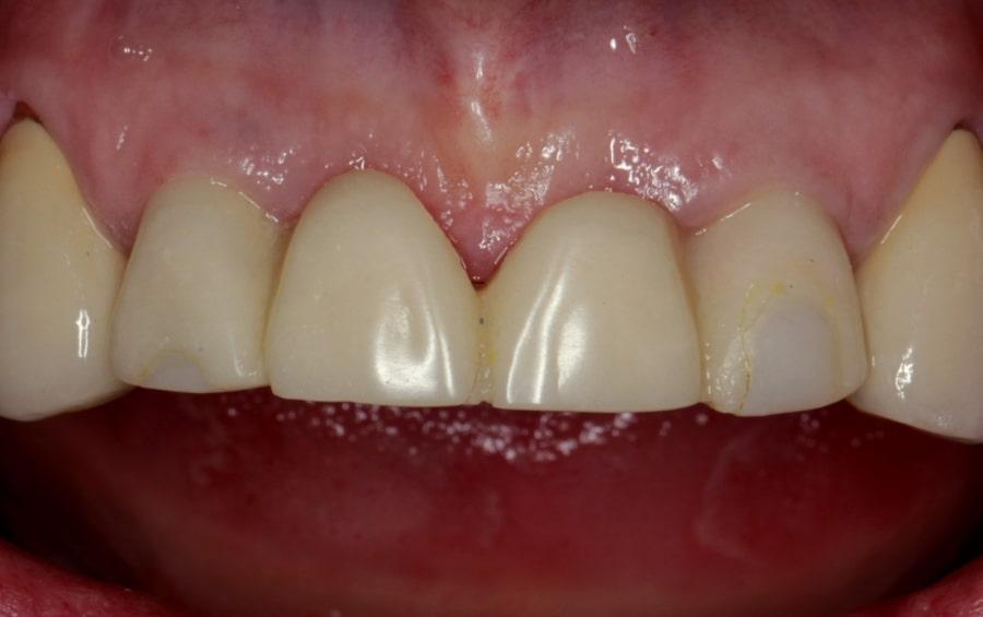 Зубы после установки зубного моста