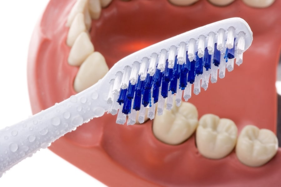Уход за зубами с мостовидным протезом