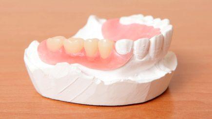 Нейлоновые зубные протезы цена Харьков