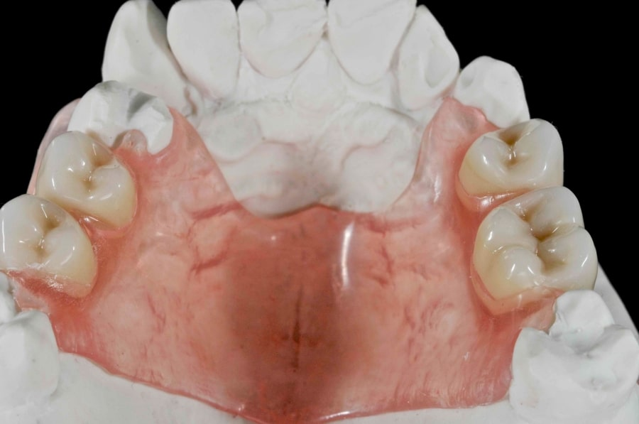 Внешний вид нейлонового зубного протеза