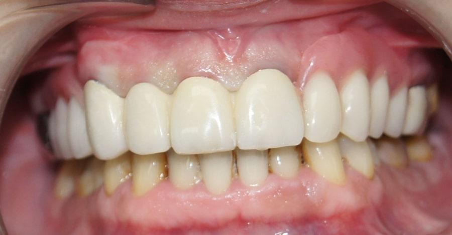 Зубы после установки протеза из нейлона