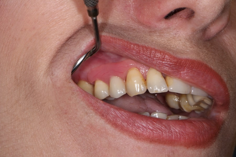 Нейлоновый протез во рту
