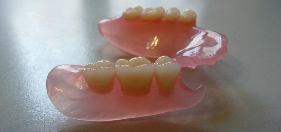 Нейлоновый протез для зубов нижней челюсти