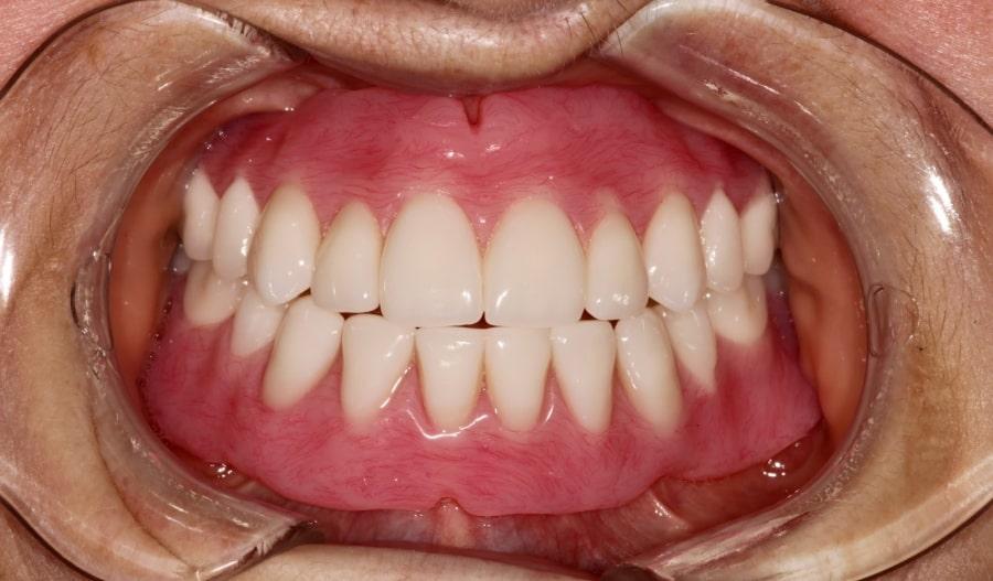 Полный нейлоновый зубной протез