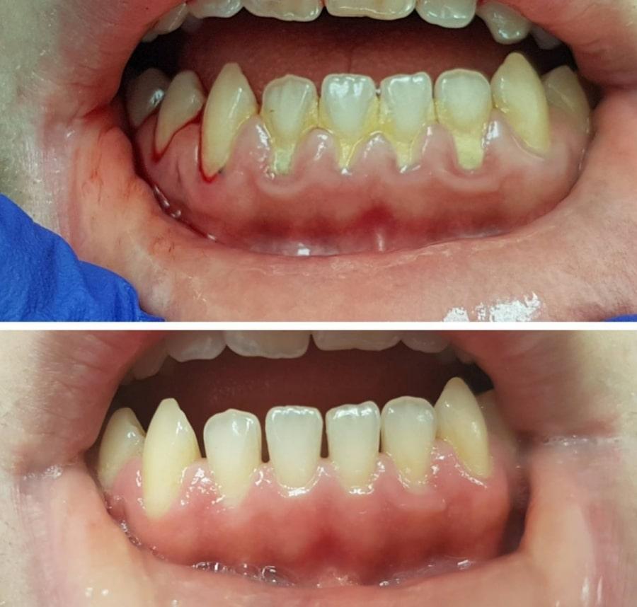 Лечение пародонтита - фото до и после
