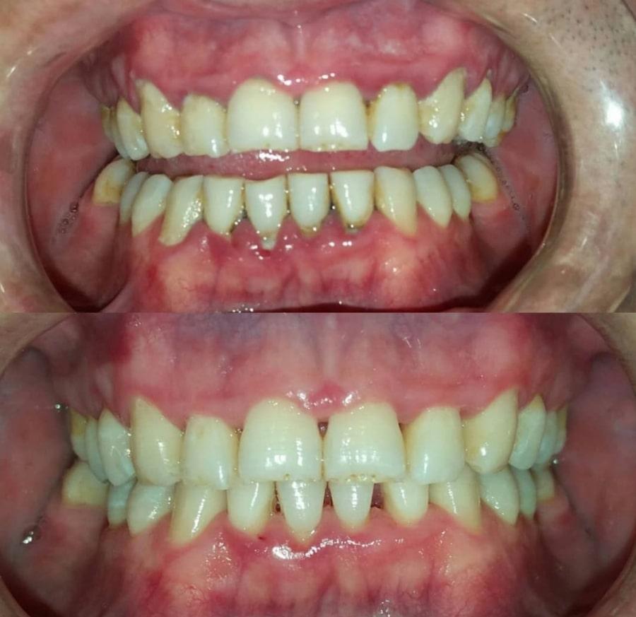 Десны до и после лечения пародонтита