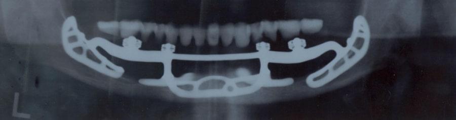 Субпериостальный имплант на рентген-снимке