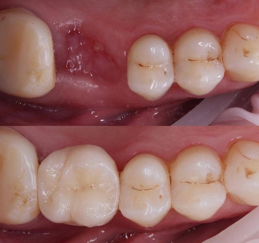 Мостовидное протезирование одного зуба