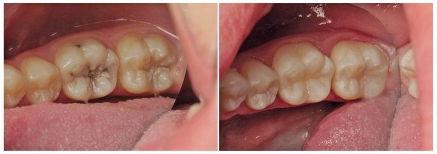 Зуб с пульпитом до и после лечения
