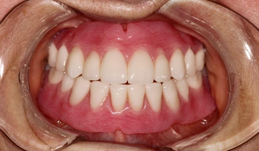 Фото съемного зубного протеза после установки на обе челюсти