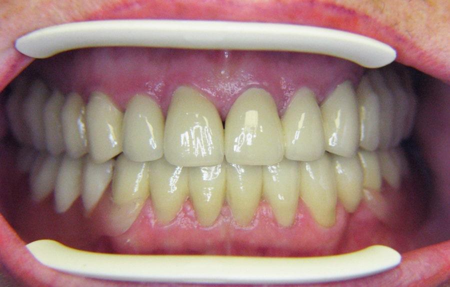 Эффект после установки съемного протеза зубов